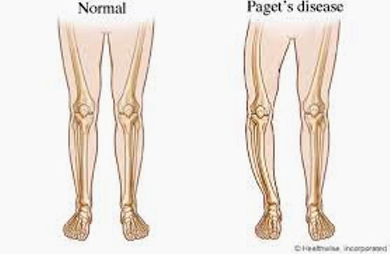 Paget U0026 39 S Disease